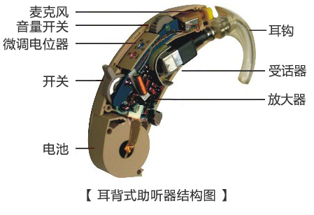 耳背式助听器结构.jpg